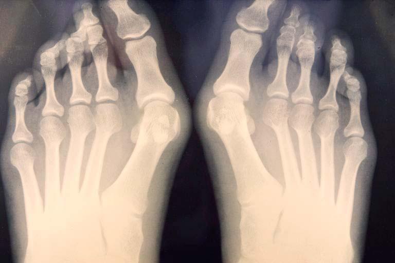 radiografia juanetes cirugía