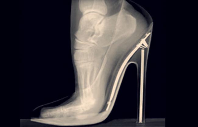 dolor metatarso por zapatos
